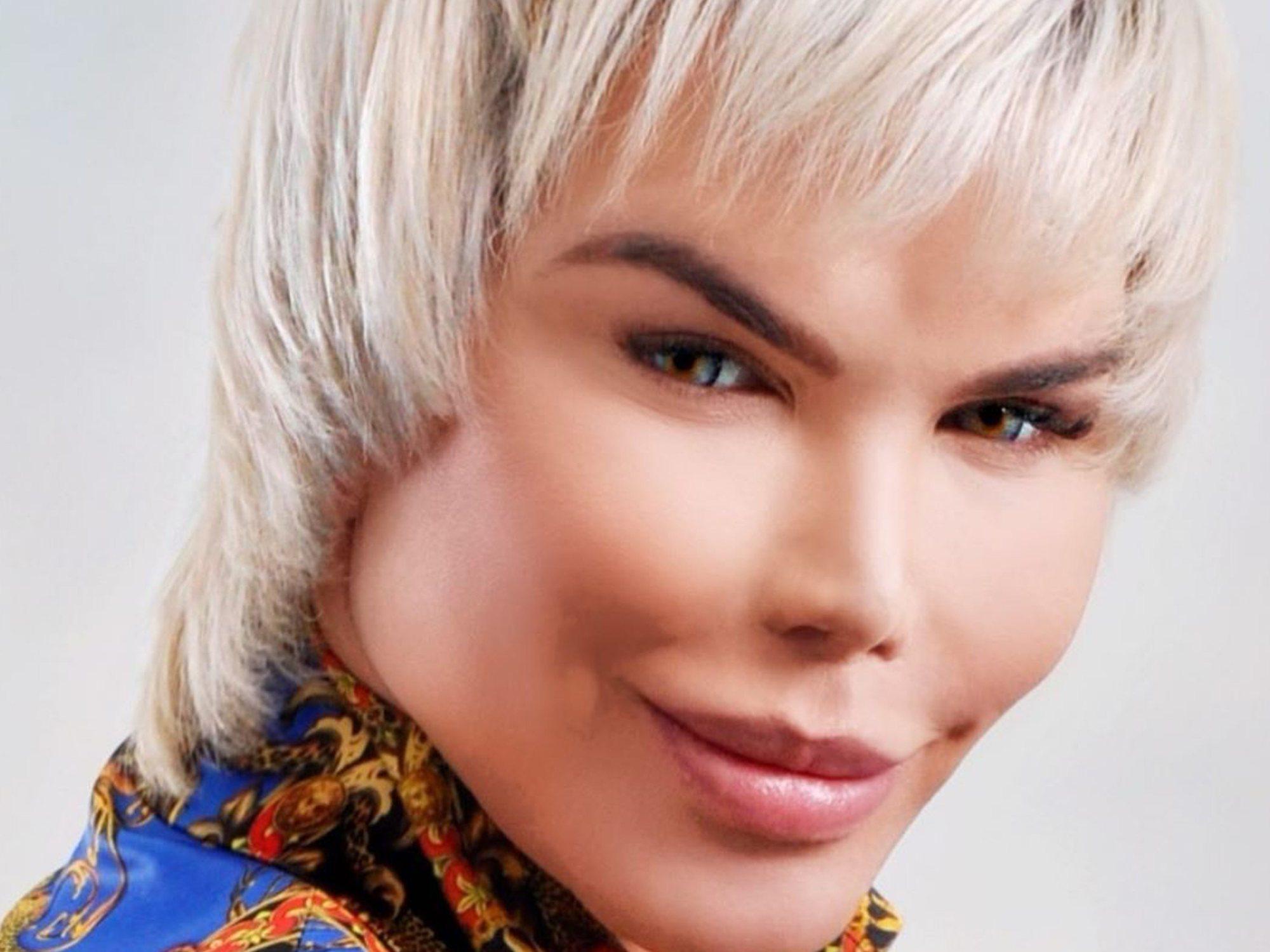 El drama del 'Ken humano': a punto de perder su nariz y lucir un agujero en la cara