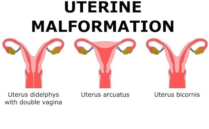 El útero didelphys afecta a una de cada 3000 mujeres