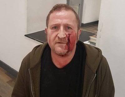 Brutal agresión homófoba a un hombre que fue engañado por un perfil falso de Grindr