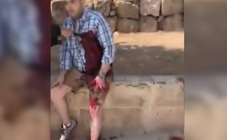 Uno de los turistas heridos durante el ataque