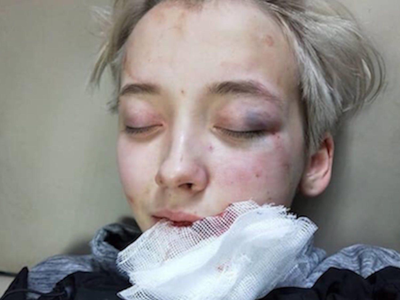 Siete hombres golpean a una joven de 18 años por su orientación sexual en San Petersburgo
