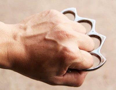 Detenido un líder de VOX por destrozar la cara al amigo de su exmujer con un puño americano