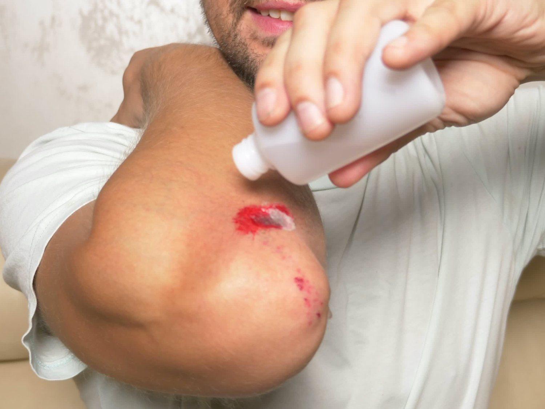 La razón por la que deberías dejar de usar agua oxigenada para curar las heridas