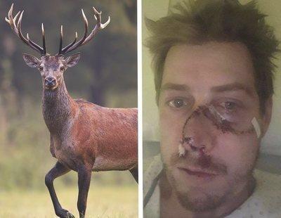 Un ciervo embiste y arranca medio rostro a un cazador que estaba disparando a varios animales