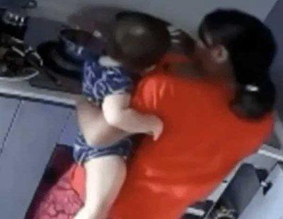 Una niñera quema con agua hirviendo el brazo de una niña que cuidaba de forma intencionada