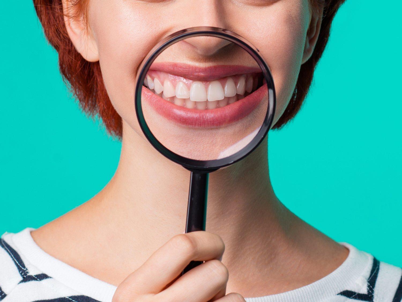 Una extraña enfermedad hace que a una mujer le crezcan pelos en las encías