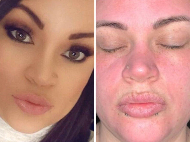 Una joven compra esta crema facial del supermercado y le destroza la cara