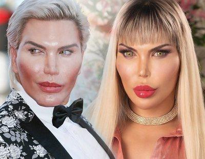 El 'Ken humano' ya es Barbie: así está siendo su cambio de sexo