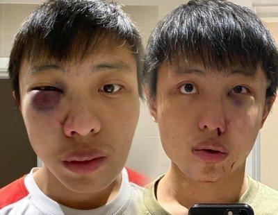 """Agreden brutalmente a un joven asiático en Londres: """"No quiero tu coronavirus en mi país"""""""