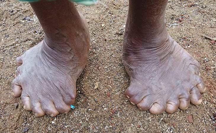 Los 19 dedos de los pies de Kumari Nayak