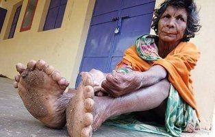 La mujer india con 31 dedos en los pies y 9 en la mano consigue nuevo récord mundial