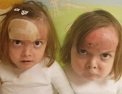 """Las gemelas con piel de mariposa que llevan meses en el hospital: """"¿Y vosotros os quejáis?"""""""