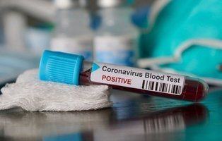 China acusa a España de comprar test de coronavirus sin licencia y el Gobierno indica su homologación europea