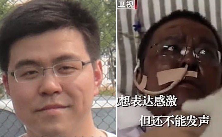 Ambos médicos han visto cómo su piel se oscurecía progresivamente