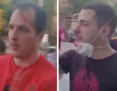 Pelea durante la cacerolada contra el Gobierno en Moratalaz deja varios jóvenes ensangrentados
