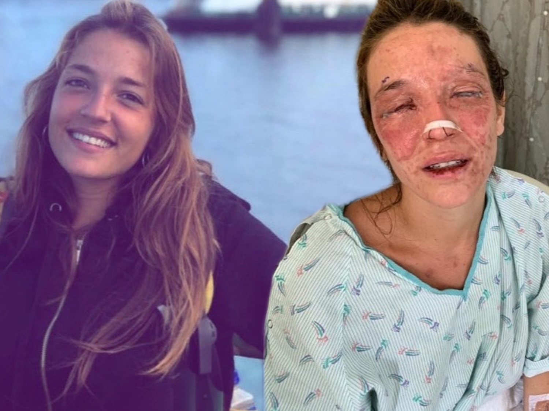 El grito de ayuda de Marta Bustos, la joven de Terrassa que se quemó los ojos con sosa cáustica