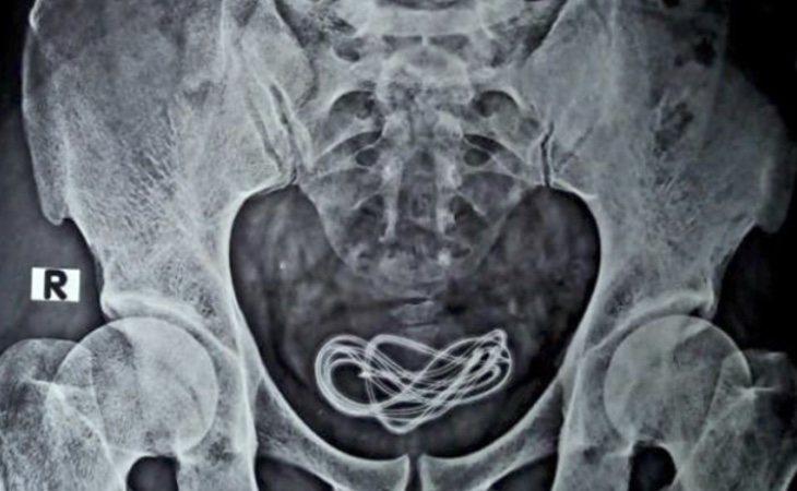 La radiografía desveló un cable de 60 centímetros en el interior de su organismo