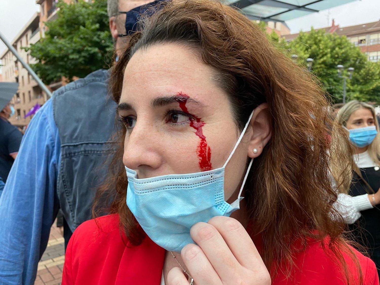 VOX denuncia que una diputada ha recibido una pedrada en un mitin del partido en Sestao