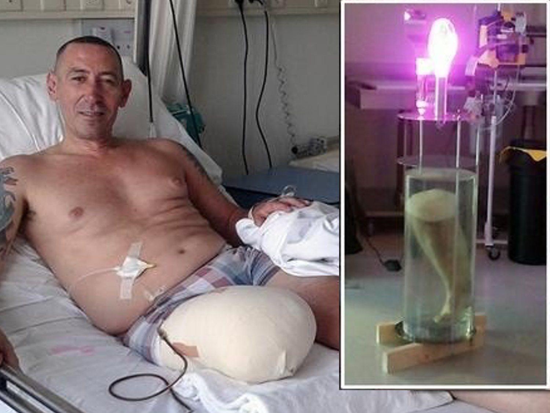 Convierte su pierna amputada en una lámpara y la intenta vender en eBay por 108.000 euros