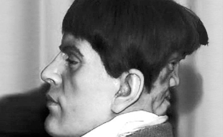 Edward Mordrake desarrolló dos caras en su cabeza debido a una enfermedad congénita