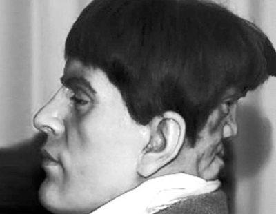 La sorprendente vida de Edward Mordrake, el hombre con una cabeza compuesta por dos caras