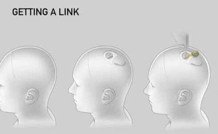 El implante se insertaría por la parte superior del cráneo