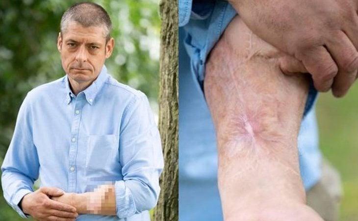 Uno de los brazos de Malcolm se ha utilizado para extraer los vasos sanguíneos o tejidos y el otro para implantar el pene
