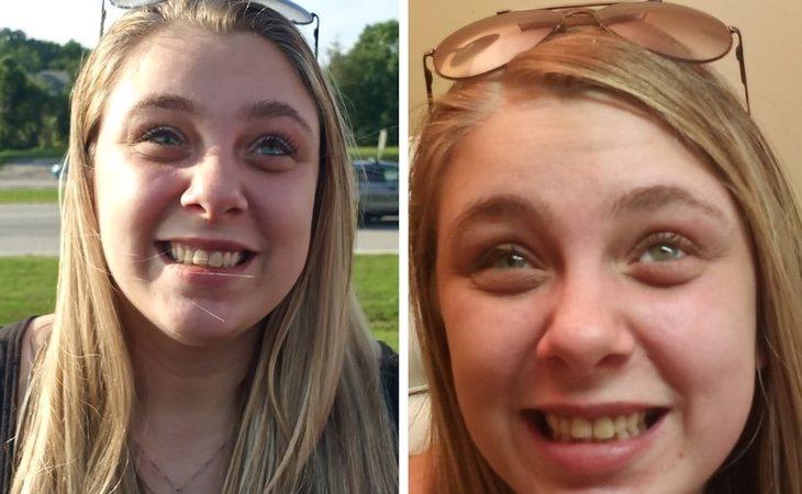 La joven recuperó su rostro el pasado mes de julio gracias a unos ojos artificiales