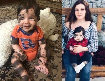 """Un bebé nace con manchas en el cuerpo y el hospital ofrece a sus padres """"abandonarlo"""""""