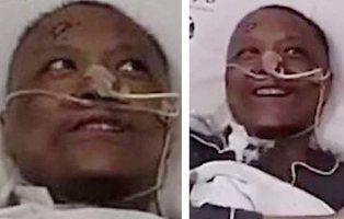Reaparece el doctor chino al que el coronavirus le volvió la piel negra: así es su aspecto