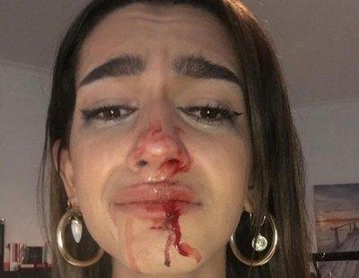 """Brutal agresión a una joven trans en Barcelona: """"No tenéis derecho a hacer esto"""""""