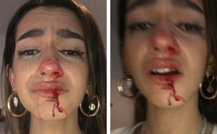 Eva, con la cara ensangrentada tras la agresión tránsfoba sufrida