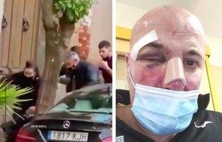 La víctima de la agresión policial de Linares, imputada por atentar contra la autoridad