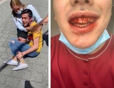 Una familia propina una brutal paliza homófoba a su hijo de 18 años en Murcia