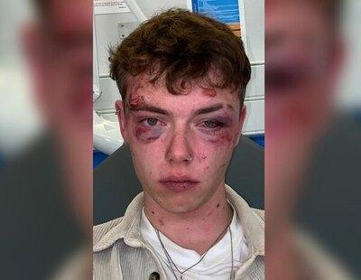 Bifobia: Brutal agresión a un joven bisexual de 19 años dejándole la cara destrozada