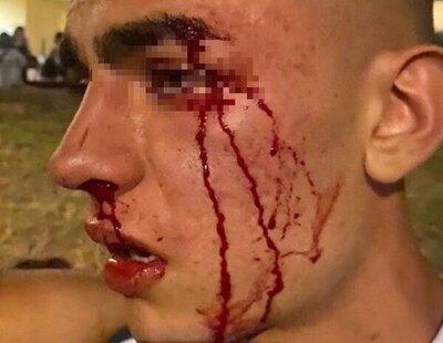 """Brutal agresión homófoba en Valencia contra un menor: """"Es muy triste tener miedo a ir con un amigo de la mano"""""""