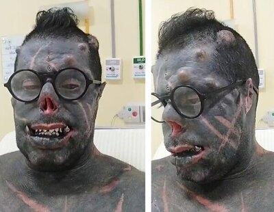 Un hombre cumple su sueño: convertirse en el 'Satán Humano' tras 25 años de cirugías