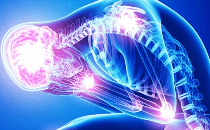 El síndrome de Guillain-Barré es un problema neuronal