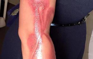Una mujer sufre graves quemaduras por quedarse dormida junto a su iPhone 7