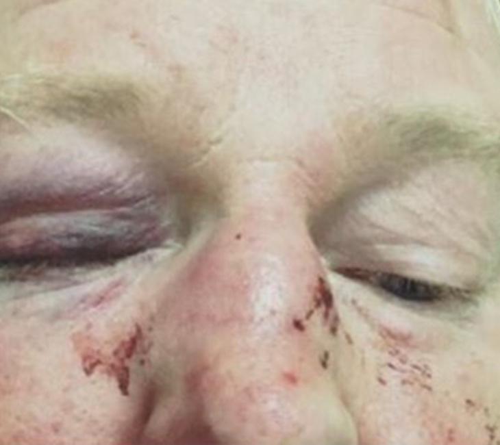 Las graves heridas obligaron al chef a ser hospitalizado