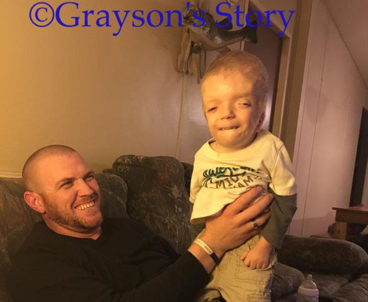 Grayson con su padre
