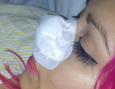 Una chica le arranca la nariz a la exnovia de su pareja de un mordisco en Sevilla