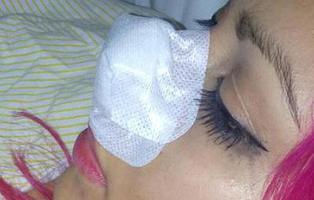Una chica le arranca la nariz a la exnovia de su pareja de un mordisco