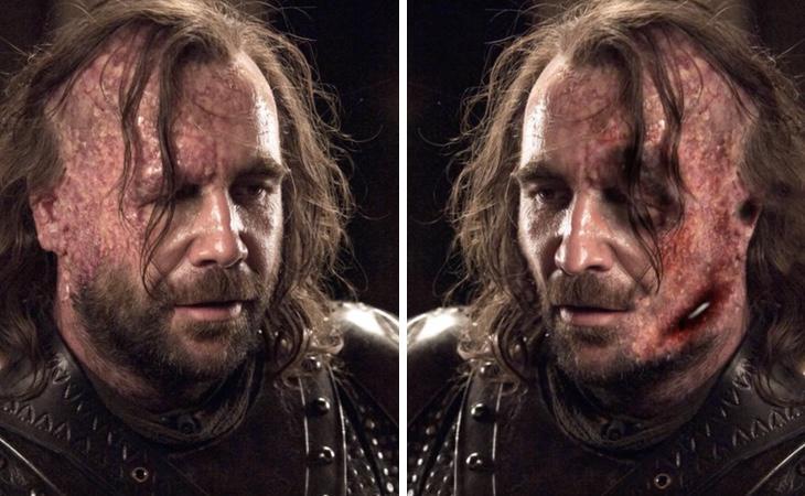 Sandor Clegane tiene la cara aún más destrozada en los libros