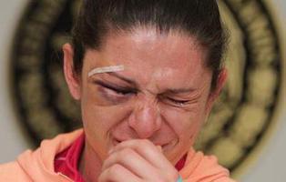 La deportista Ana Guevara es atacada en Twitter tras ser golpeada por cuatro hombres