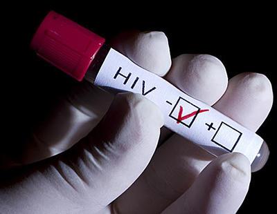 Rusia lanza su propio Registro Nacional de personas con VIH