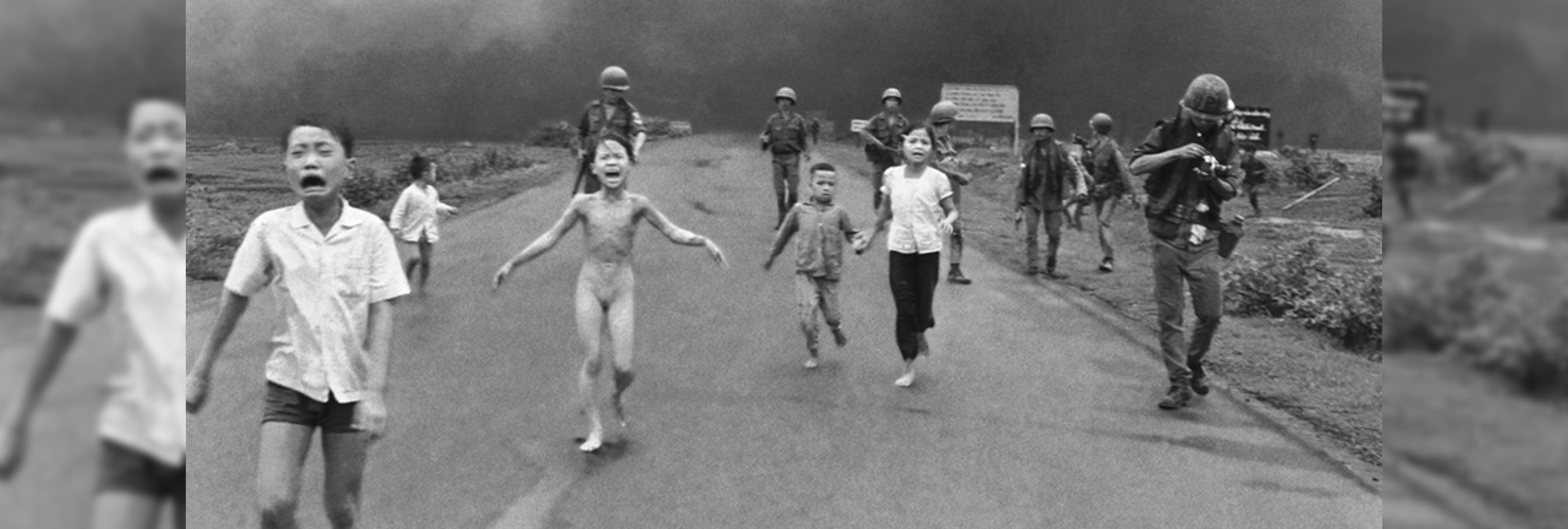 La 'niña del napalm' recupera la sensibilidad en la piel 44 años después de la tragedia