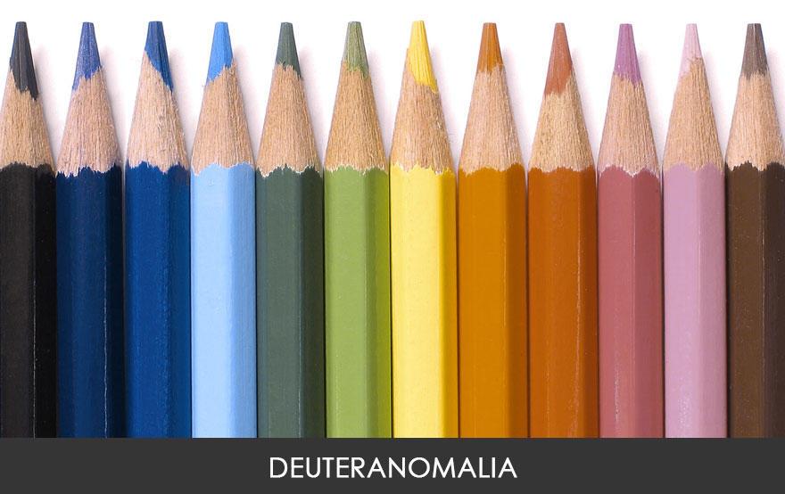 Deuteranomalia