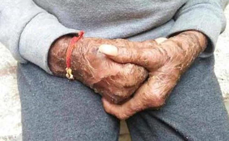 El tratamiento que necesita Shalini es muy costoso