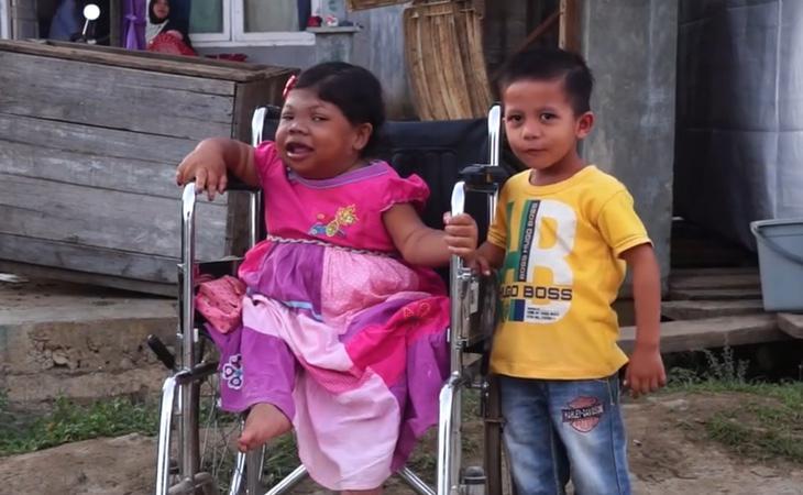 Sari tiene el mismo desarrollo que una niña de dos años